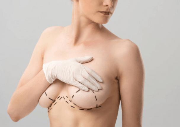 areola/nipple correction